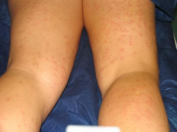 Urticaria por depilación láser. Caso de estudio en Dermitek