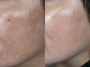 antes-despues-melasma-300x225