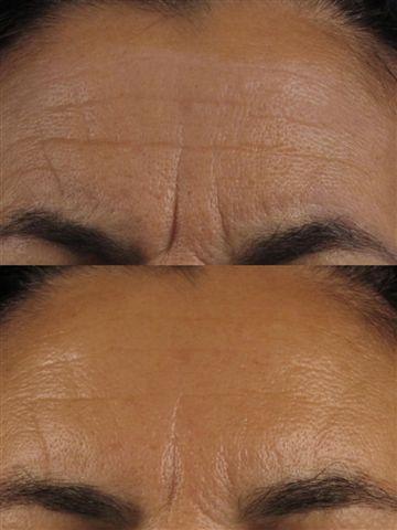 Antes-después-botox-Dermitek