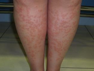 urticaria_alergia_depilacion_laser_Dermitek2